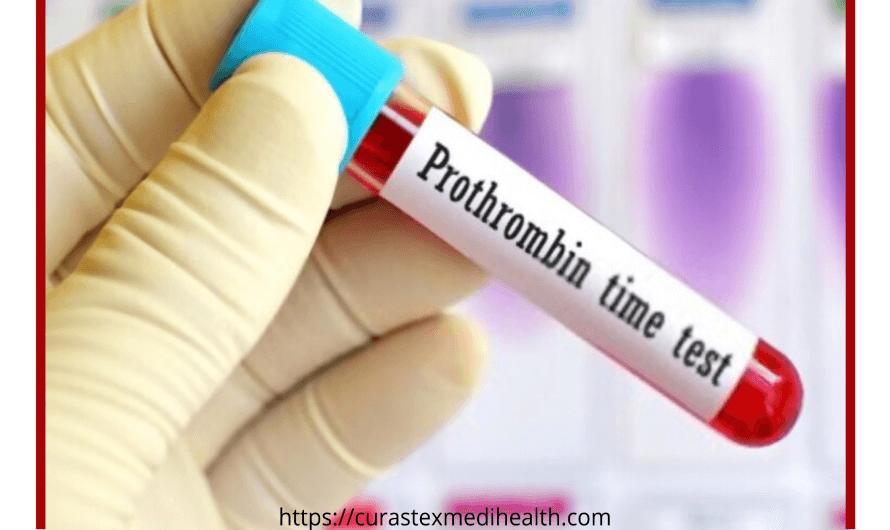 Prothrombin Time Test (PTT) | International Normalised Ratio (INR) | Procedure | Result